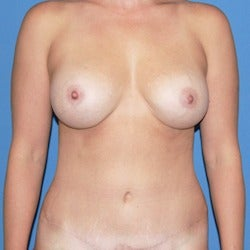 25-34 year old woman treated with Mommy Makeover after 1860542