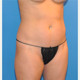 Liposuction of abdomen and wasit before 3530705