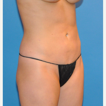 Liposuction of abdomen and wasit after 3530705