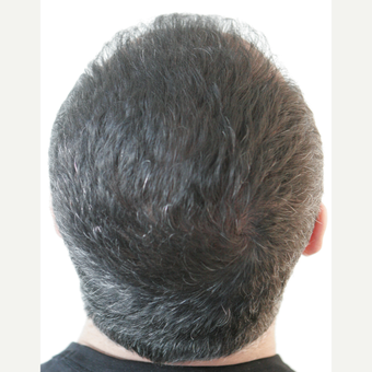 45-54 year old man treated with FUE Hair Transplant after 3210931