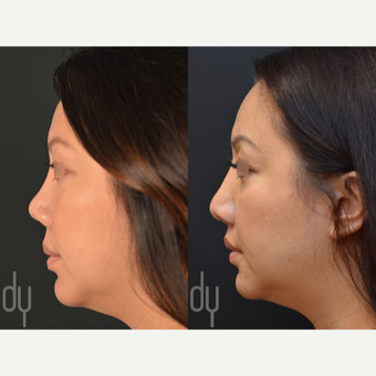 Revision Asian Rhinoplasty before 3477561
