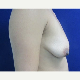 25-34 year old woman treated with Breast Implants 1799301