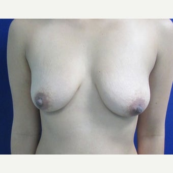 25-34 year old woman treated with Breast Implants before 1799301