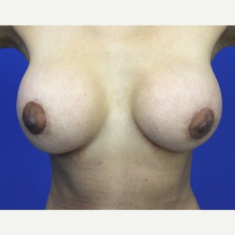 25-34 year old woman treated with Breast Implants after 1799301