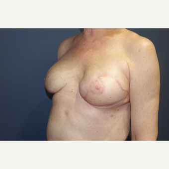 55-64 year old woman treated with latissimus dorsi flap and implant after 3382740