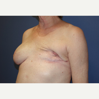 55-64 year old woman treated with latissimus dorsi flap and implant before 3382740
