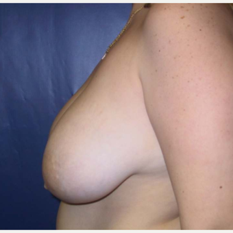 Breast Reduction before 2129929
