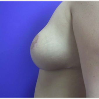 Breast Reduction after 2129929