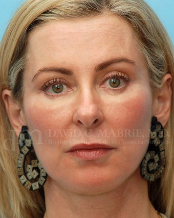 Cheek Augmentation Using Juvederm after 658794
