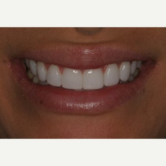 25-34 year old woman treated with Porcelain Veneers
