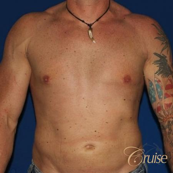 38 year old man treated with Male Breast Reduction after 3502260