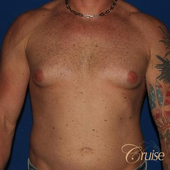 38 year old man treated with Male Breast Reduction before 3502260