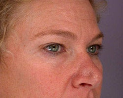 Eyelid Surgery before 280384