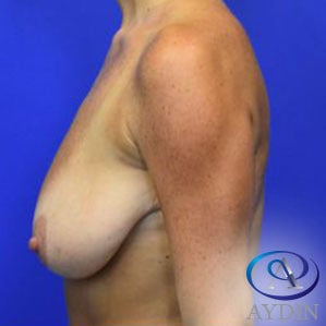 25-34 year old woman treated with Breast Lift before 3331173