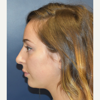 18-24 year old woman treated with Nose Surgery after 3503409