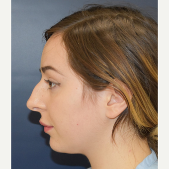 18-24 year old woman treated with Nose Surgery before 3503409