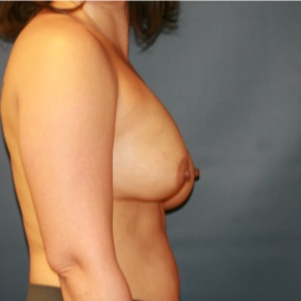 35-44 year old woman treated with Breast Implant Revision before 3555562