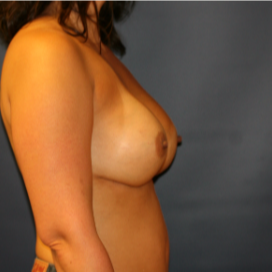 35-44 year old woman treated with Breast Implant Revision after 3555562