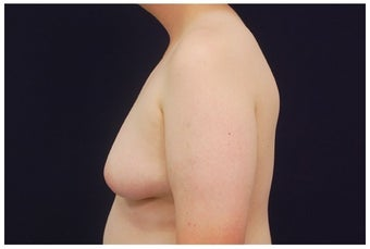 Gynecomastia before 1175751
