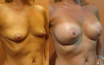 Breast Implants before 974259