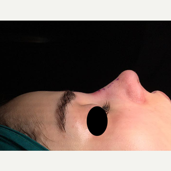 25-34 year old woman treated with Rhinoplasty after 3211781
