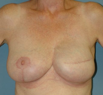 Breast Reconstruction 665426