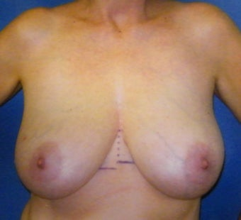 Breast Reconstruction before 665426