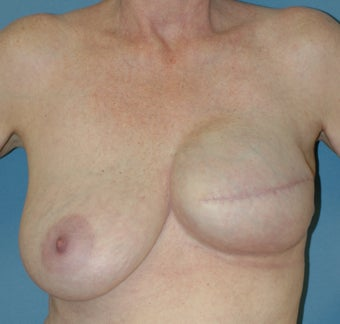 Breast Reconstruction after 665426