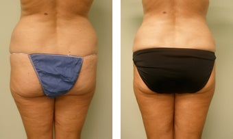 vaser liposuction before 983133