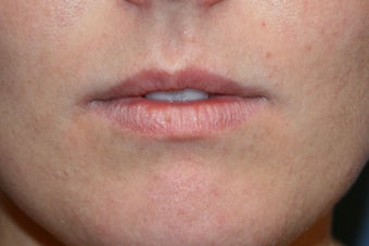 Lip augmentation with Juvederm before 91251