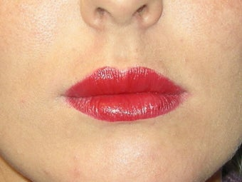 Lip augmentation with Juvederm after 91251