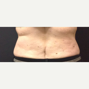 45-54 year old woman treated with SculpSure before 3624994