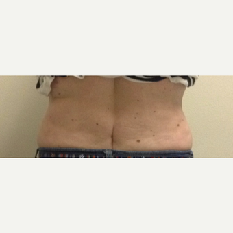 45-54 year old woman treated with SculpSure after 3624994