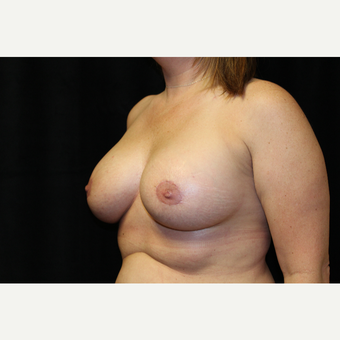 35-44 year old woman treated with Breast Augmentation after 3659082