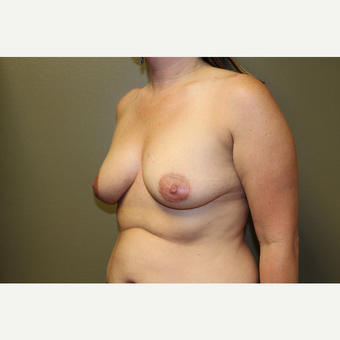 35-44 year old woman treated with Breast Augmentation before 3659082