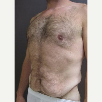 45-54 year old man treated with Circumferential Body Lift before 1953137