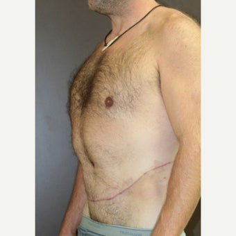 45-54 year old man treated with Circumferential Body Lift after 1953137