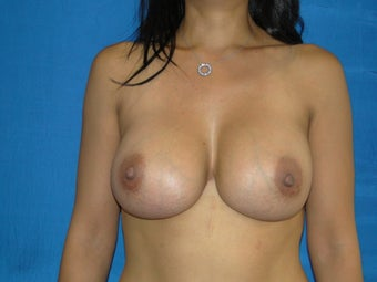 Strattice Breast Revision