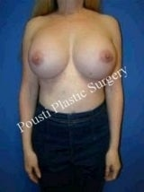 Extra Large Breast Augmentation, Silicone gel Implants after 1257100