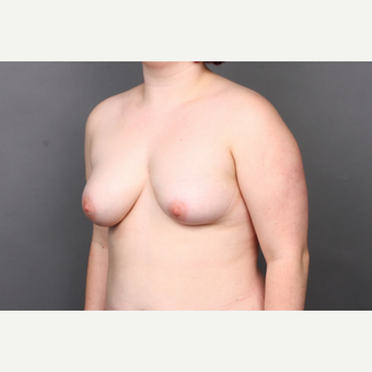 25-34 year old woman treated with Breast Reconstruction before 3131358