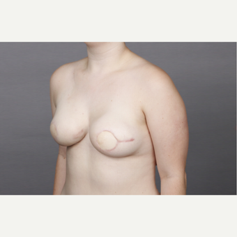 25-34 year old woman treated with Breast Reconstruction after 3131358