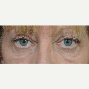 55-64 year old woman treated with Eyelid Surgery before 3453866