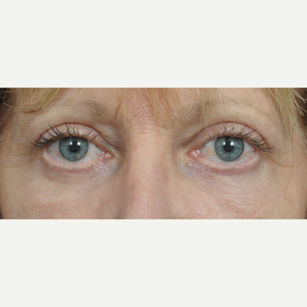 55-64 year old woman treated with Eyelid Surgery after 3453866