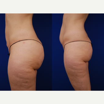 25-34 year old woman treated with Brazilian Butt Lift before 3502482