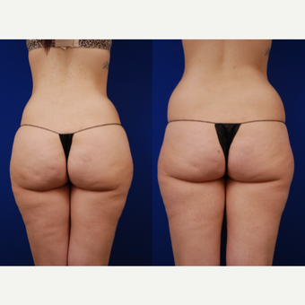 25-34 year old woman treated with Brazilian Butt Lift after 3502482