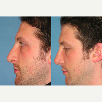 35-44 year old man treated with Rhinoplasty before 3521735