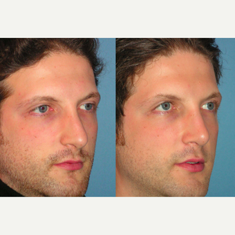 35-44 year old man treated with Rhinoplasty after 3521735