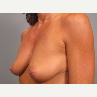 45-54 year old woman treated with Breast Lift with Implants before 3464316