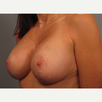 45-54 year old woman treated with Breast Lift with Implants after 3464316
