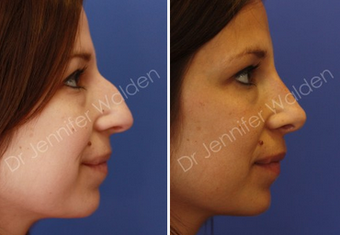 Septorhinoplasty before 1112651